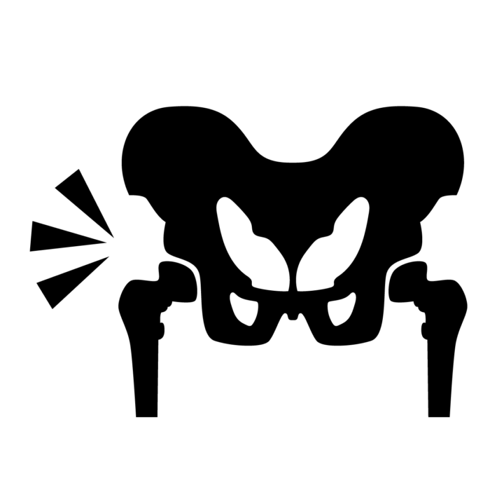 「変形性股関節症」のリハビリの画像